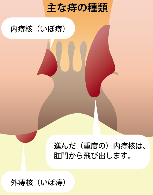痔核(いぼ痔)