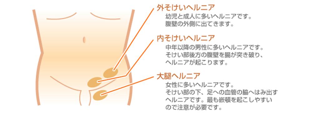 痛み 鼠径 部